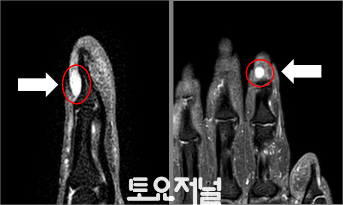 [첨부사진] MRI상 사구체종양.png
